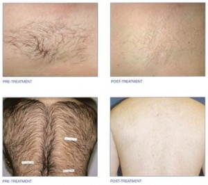 hair-removal-2-300x266