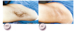 hair-removal-3-300x124